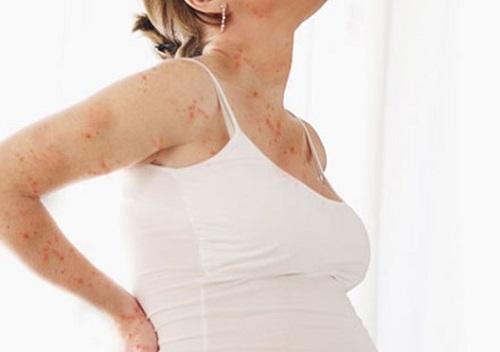 Những lưu ý về bệnh thủy đậu khi mang thai - Ảnh 2