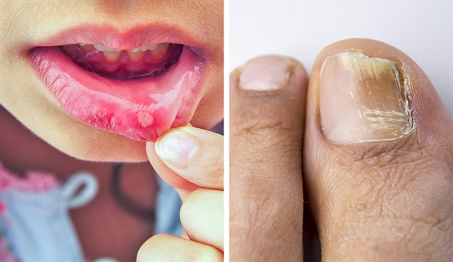 10 tác dụng phụ của thuốc kháng sinh bác sĩ không bao giờ nói ra - Ảnh 1
