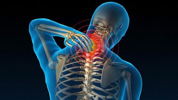 3 cách điều trị thoái hóa cột sống hiệu quả nhất hiện nay - Ảnh 1