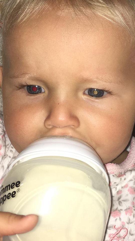 Bà mẹ chia sẻ kinh nghiệm nhận biết trẻ bị ung thư mắt qua đôi mắt mèo - Ảnh 1