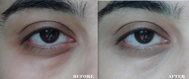 5 cách trị thâm quầng cấp tốc cho đôi mắt mệt mỏi sau những cuộc vui chơi - Ảnh 8
