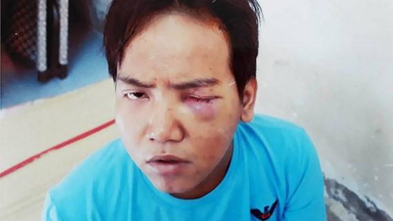 Đình chỉ điều tra vụ bảo vệ dân phố sát hại bé trai 6 tuổi ở Sài Gòn - Ảnh 1
