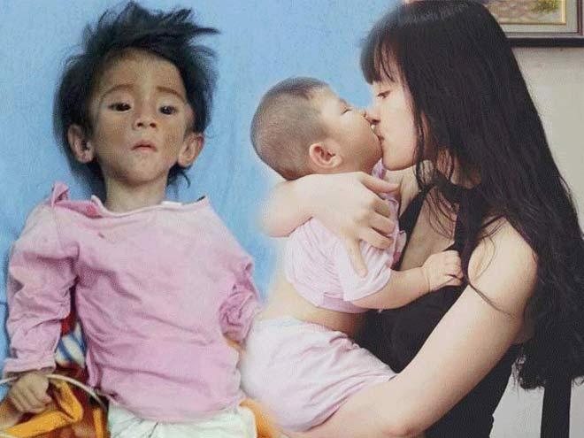 Cô gái nhận nuôi em bé suy dinh dưỡng: Lấy chồng vẫn đưa con theo - Ảnh 1
