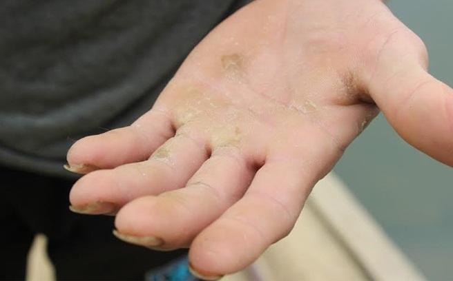 Xóa hết vết chai tay, chai chân da mềm mại ngay tức khắc - Ảnh 1