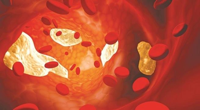 Dược thiện trị mỡ máu cao ở người già - Ảnh 1
