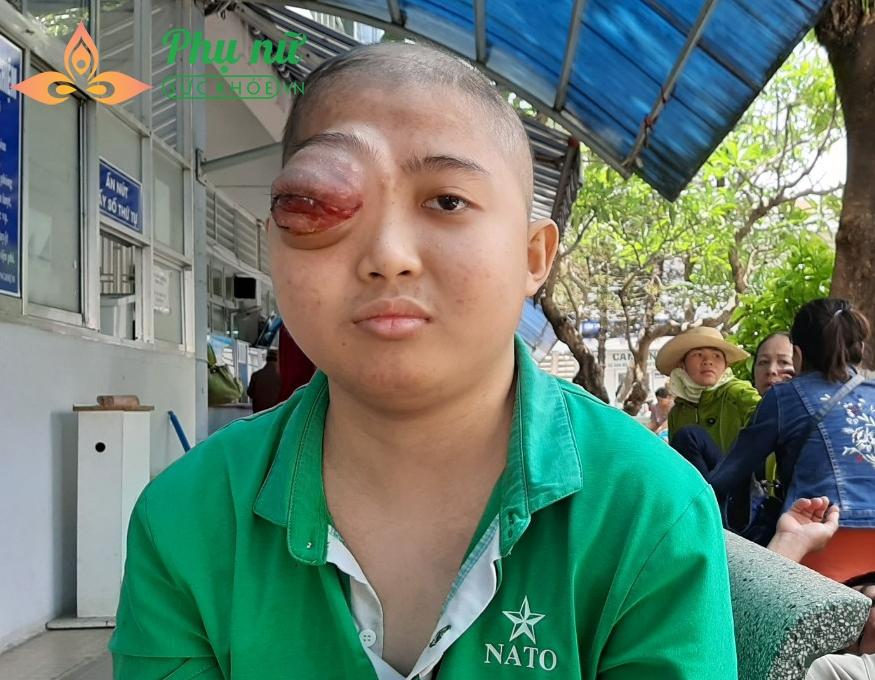 Thanh chỉ mong có phép màu giúp mình có sức khỏe và đôi mắt được lành lặn để tiếp tục việc học
