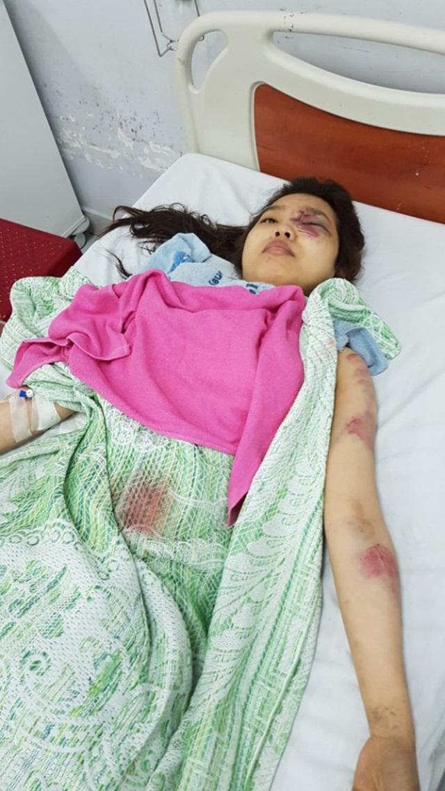 Tai nạn giao thông nghiêm trọng khiến 16 người thương vong: Ám ảnh tiếng la hét kinh hoàng lúc rạng sáng - Ảnh 4