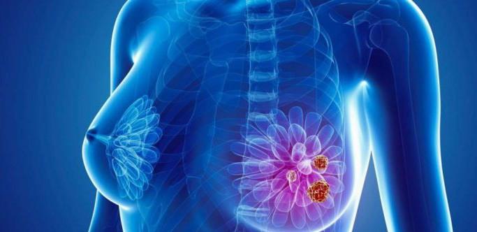Xót xa người phụ nữ vừa xạ trị ung thư vú 5 năm lại bị di căn xương, BS chỉ định nhóm người dễ mắc căn bệnh quái ác này - Ảnh 1