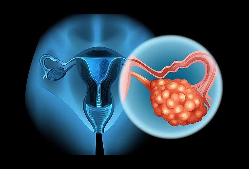 Cô gái 20 tuổi bị suy buồng trứng nguyên nhân là do 1 thói quen ban đêm nhiều người mắc phải, phụ nữ không muốn bị vô sinh thì phải bỏ ngay - Ảnh 2