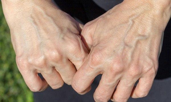 Nổi gân xanh bất thường ở 3 vùng này có thể cảnh báo bệnh tim hoặc có u trong người - Ảnh 2