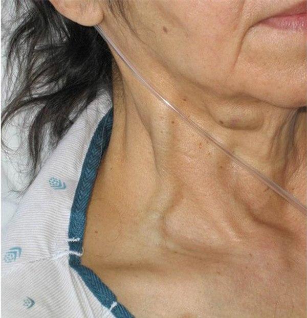 Nổi gân xanh bất thường ở 3 vùng này có thể cảnh báo bệnh tim hoặc có u trong người - Ảnh 5