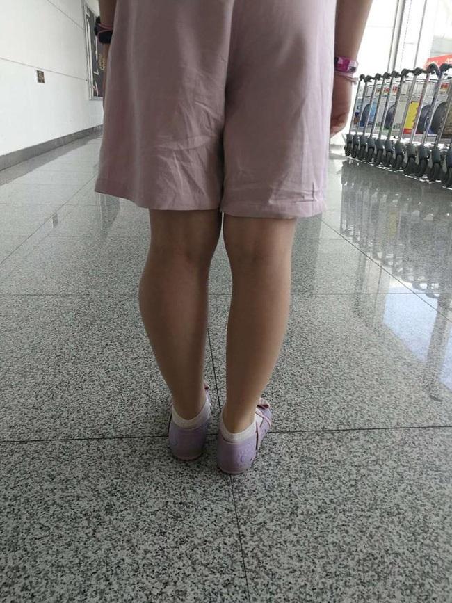 Nếu thấy 2 chân con có dấu hiệu này, cha mẹ nên đưa đi khám ngay để phát hiện sớm bệnh ung thư xương ác tính - Ảnh 1