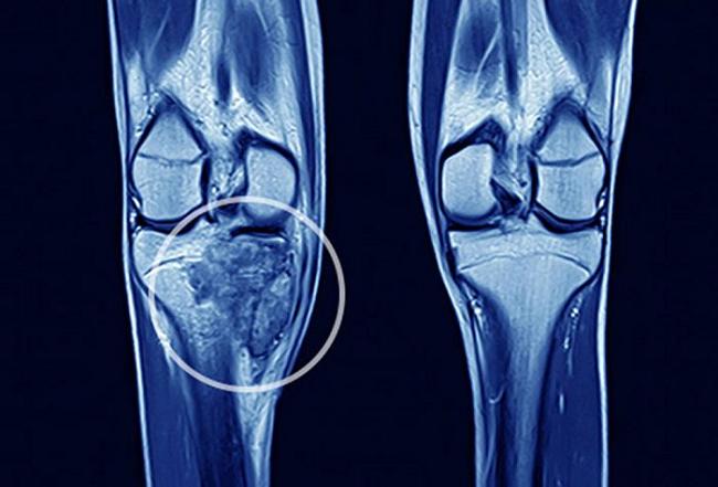 Nếu thấy 2 chân con có dấu hiệu này, cha mẹ nên đưa đi khám ngay để phát hiện sớm bệnh ung thư xương ác tính - Ảnh 2