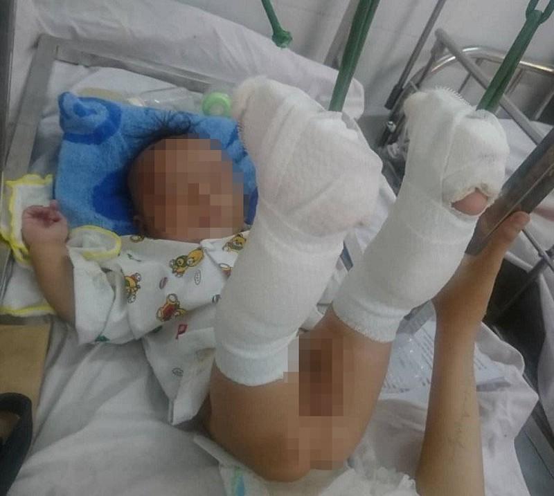 Phẫn nộ lời khai của gã cha đánh con 4 tháng xuất huyết não, gãy 2 chân - Ảnh 1