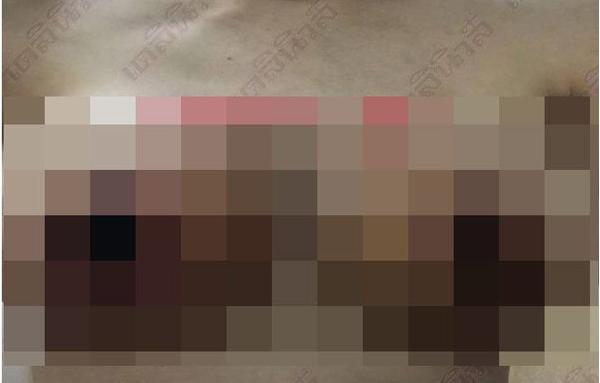 Đi phẫu thuật thu nhỏ 'vòng một', người phụ nữ hốt hoảng khi nhìn xuống ngực - Ảnh 1