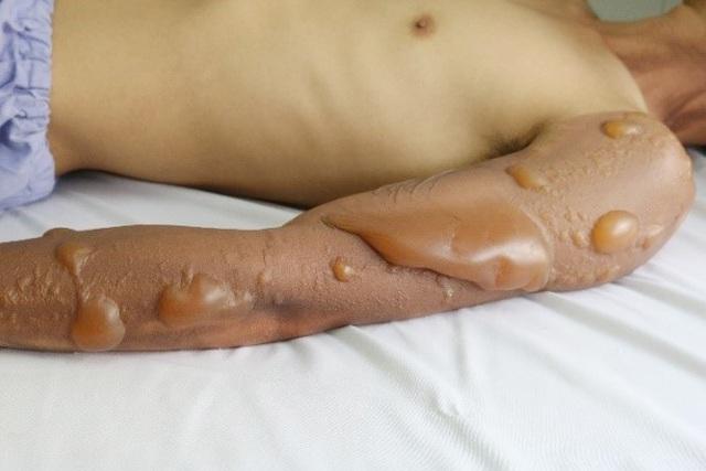 Thanh niên bị bỏng nặng vì bất cẩn nhiều người dễ gặp phải khi dùng bếp gas - Ảnh 2