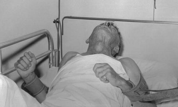 Căn bệnh đáng sợ, đã mắc phải là tử vong: Bác sĩ khuyên bạn điều này - Ảnh 1