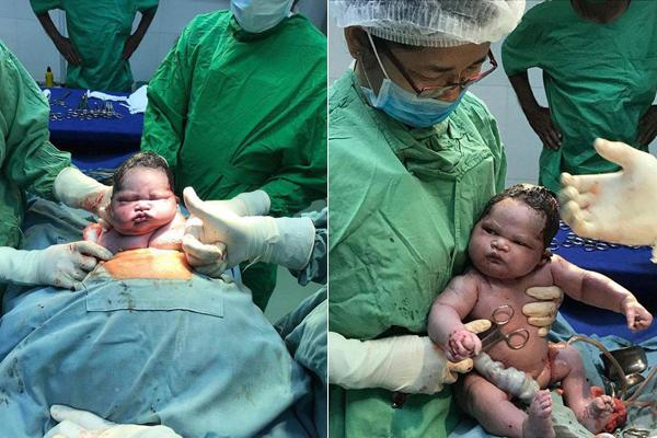 Những em bé sơ sinh vừa chào đời đã 'hờn cả thế giới' - Ảnh 8