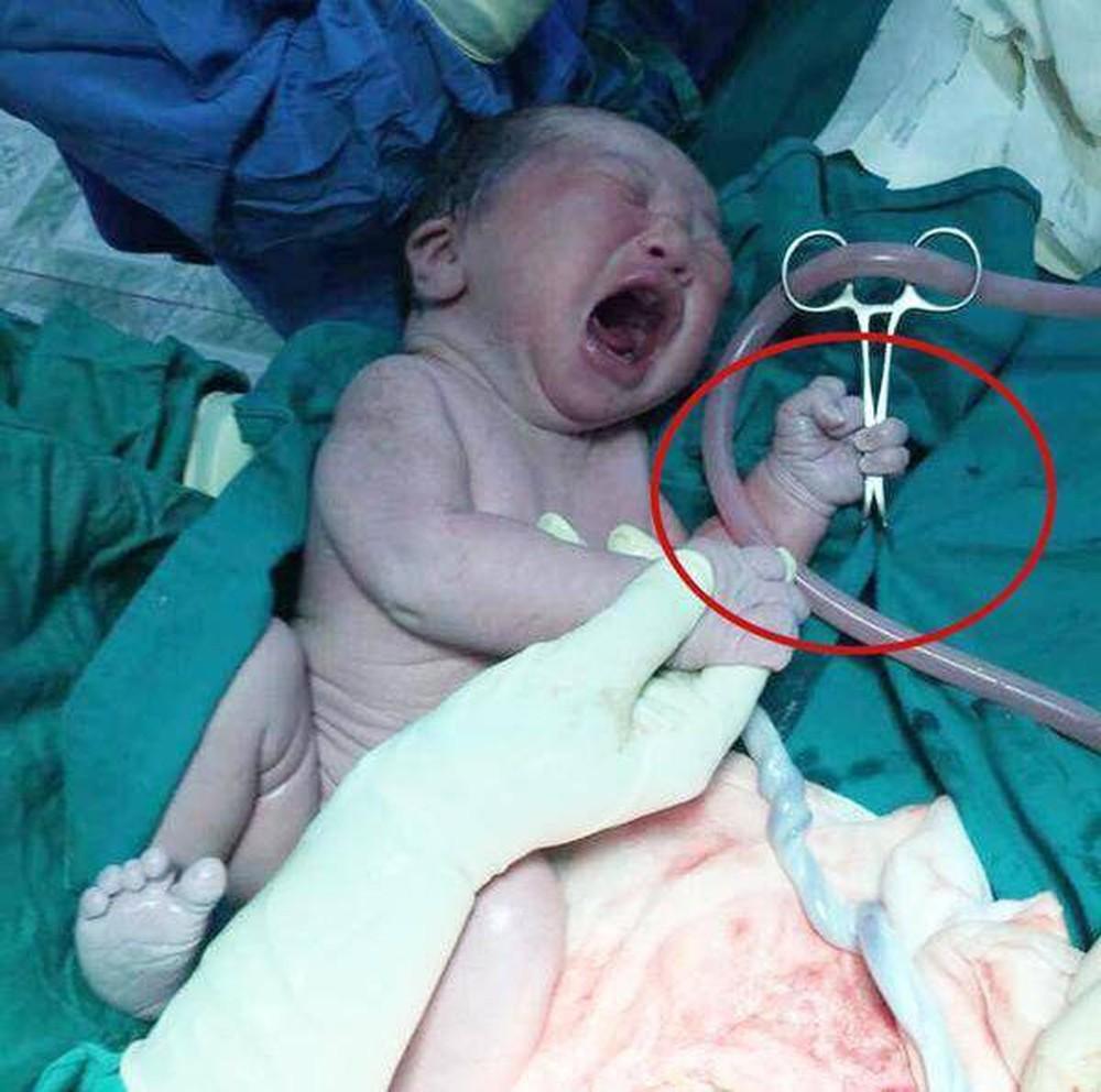Những em bé sơ sinh vừa chào đời đã 'hờn cả thế giới' - Ảnh 10
