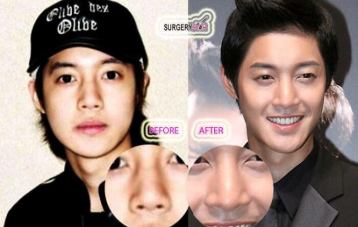 4 sao nam Hàn Quốc phẫu thuật thẩm mỹ: Có cả Ji Chang Wook và Kim Hyun Joong? - Ảnh 12