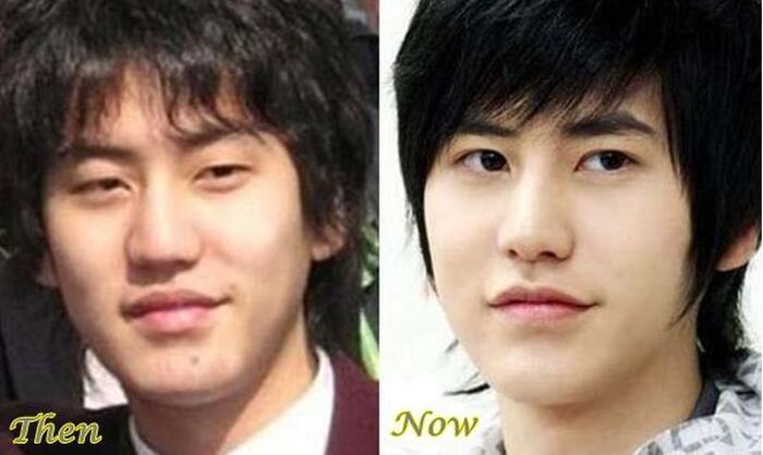 4 sao nam Hàn Quốc phẫu thuật thẩm mỹ: Có cả Ji Chang Wook và Kim Hyun Joong? - Ảnh 14