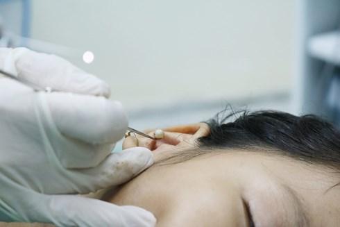 Bệnh nhi bị hạt đồ chơi chui vào tai lâu ngày, viêm tấy ống tai - Ảnh 1