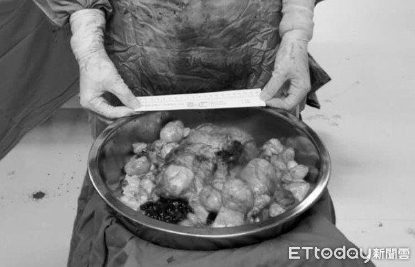 Người phụ nữ mọc 80 khối u xơ tử cung, bác sĩ phụ khoa khuyên đừng mắc sai lầm này - Ảnh 1