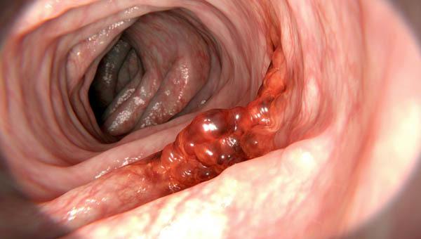 Nam thanh niên bị ung thư dạ dày sau nhiều ngày đau bụng, nguyên nhân đến từ thói quen 'chết người' này - Ảnh 1