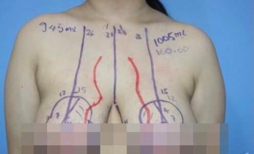 Nữ sinh 14 tuổi có vòng ngực to bất thường, gấp 4 lần người lớn… bác sĩ chỉ định phẫu thuật ngay  - Ảnh 1