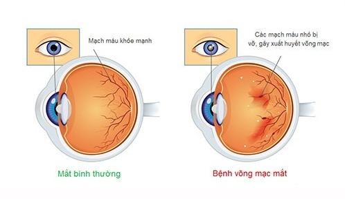 Ngăn ngừa giảm thị lực nhờ tập thể dục - Ảnh 1