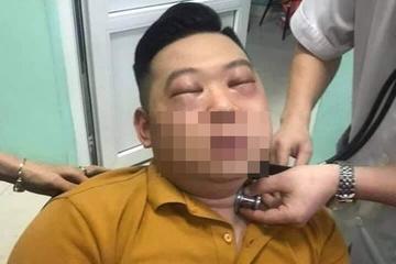 Nam thanh niên ở Phú Thọ bị sốc phản vệ do thái hành - Ảnh 1