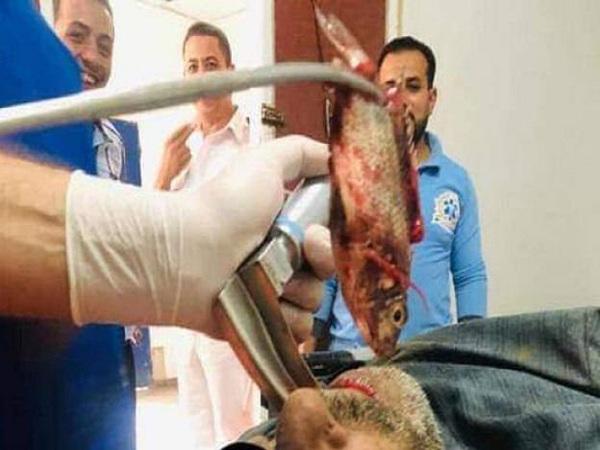 Người đàn ông bất tỉnh vì bị con cá to mắc kẹt ở thực quản, những điều cần làm khi bị hóc dị vật - Ảnh 1