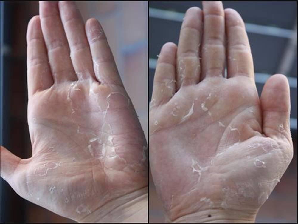 Mua nước rửa tay khô phòng bệnh, chú ý chi tiết này trên vỏ để tránh mua phải hàng giả - Ảnh 2