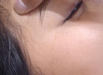 'Nóng' nhất tuần: Nữ sinh mù mắt sau khi tiêm filler, học sinh bỏ mạng vì bị điện giật - Ảnh 1
