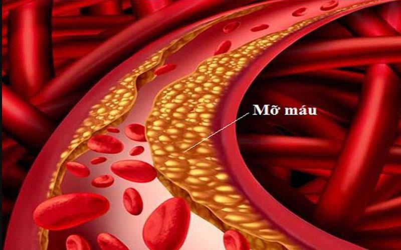 Đây là 4 'sát thủ' tàng hình bạn nên tránh xa nếu không muốn tắc mạch máu, đột tử vây vào người - Ảnh 1