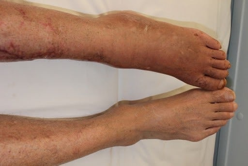 Căn bệnh có thể gây hoại tử chân thường nhầm với đau xương khớp - Ảnh 1