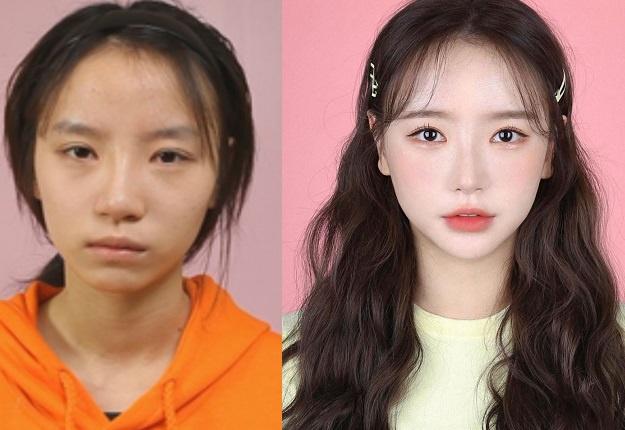 Nhan sắc mờ nhạt của hot girl đình đám xứ Hàn trước khi dao kéo - Ảnh 1