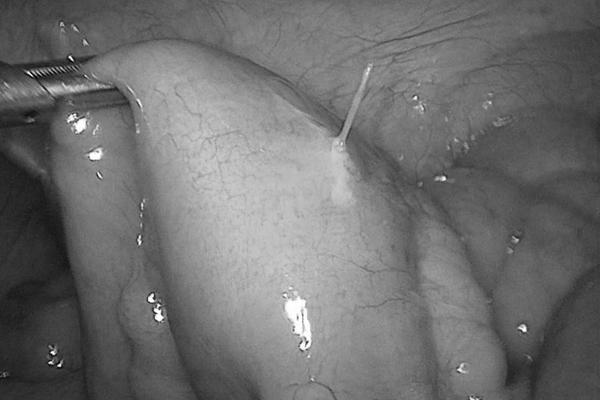 Đau bụng sau ăn phở, người phụ nữ Hà Nội bị thủng ruột - Ảnh 1