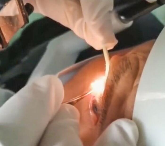 Rùng mình khoảnh khắc bác sĩ gắp 20 con giun khỏi mắt bệnh nhân, nguyên nhân chính từ thói quen nhiều người Việt hay mắc phải - Ảnh 1