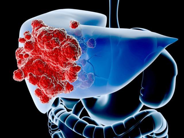 3 người trong gia đình đều bị ung thư gan, khi bác sĩ chỉ ra nguyên nhân mới biết chúng đến từ 'tủ lạnh' - Ảnh 1