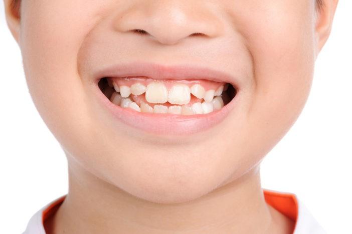 Bật mí cho cha mẹ 6 cách để con có hàm răng đều, không khấp khểnh, hô móm - Ảnh 1