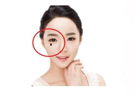 4 nốt ruồi 'cay đắng' trên mặt phụ nữ, hôn nhân thường trục trặc, dễ cô đơn cả đời - Ảnh 3