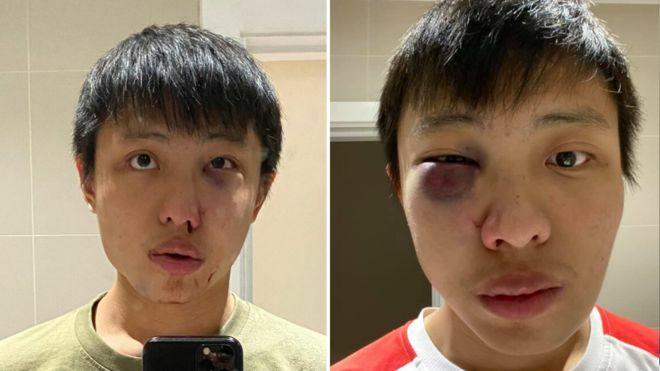 Sinh viên Singapore bị gọi 'corona', đánh hội đồng ở Anh - Ảnh 1