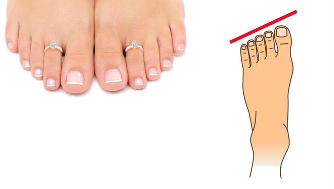 3 dấu hiệu trên bàn chân chứng tỏ phụ nữ sinh ra đã mang mệnh giàu sang, cuộc sống hạnh phúc, hưởng vinh hoa phú quý cả đời - Ảnh 2