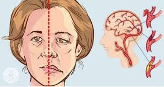 8 biểu hiện trên khuôn mặt 'tố cáo' sức khỏe của bạn đang gặp vấn đề - Ảnh 2