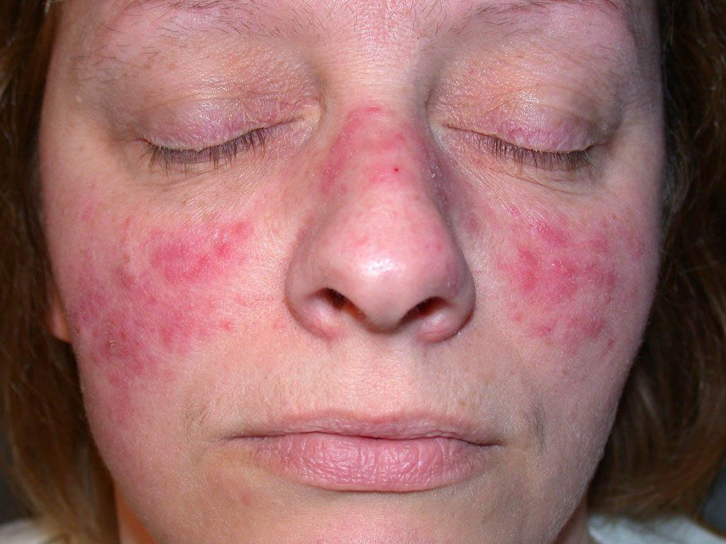 8 biểu hiện trên khuôn mặt 'tố cáo' sức khỏe của bạn đang gặp vấn đề - Ảnh 3