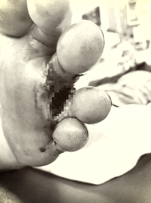 Bệnh Whitmore từng bị đồn 'ăn thịt người' tái xuất - Ảnh 1