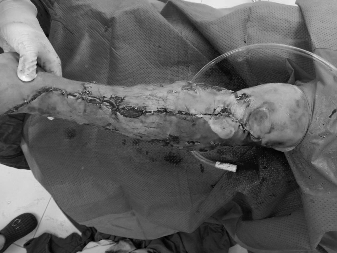 Cấp cứu nam bệnh nhân 41 tuổi đứt gân, lóc toàn bộ da cẳng chân do va chạm với xe tải - Ảnh 1