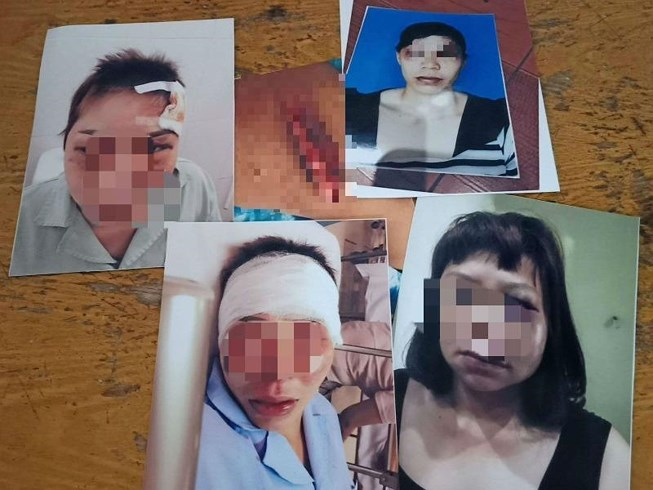 Cuộc sống bình yên của người đàn bà từng bị chồng đánh 'một phần sống, chín phần chết' gây chấn động Quảng Ninh  - Ảnh 2