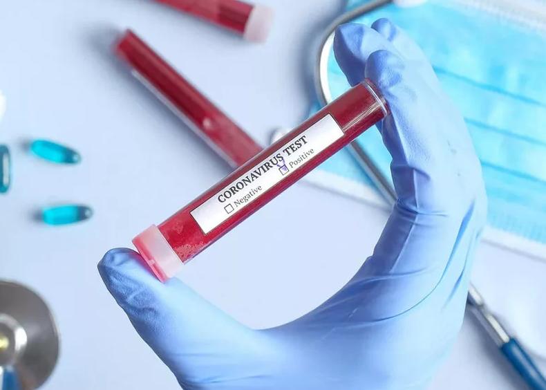 Việt Nam phát hiện trường hợp nhiễm COVID-19 thứ 32 - Ảnh 1